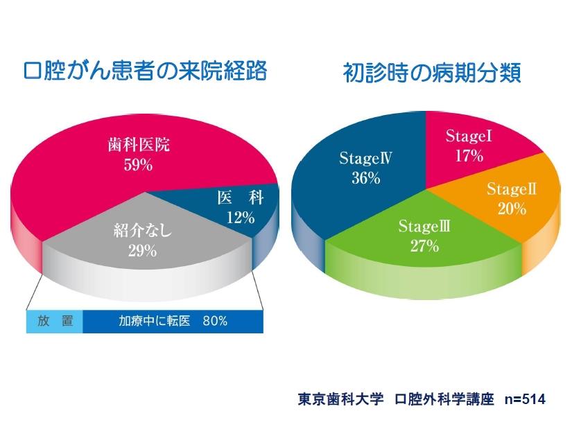 http://www.oralcancer.jp/%E3%81%8C%E3%82%93%E6%82%A3%E8%80%85%E3%81%AE%E6%9D%A5%E9%99%A2%E7%B5%8C%E8%B7%AF.jpg