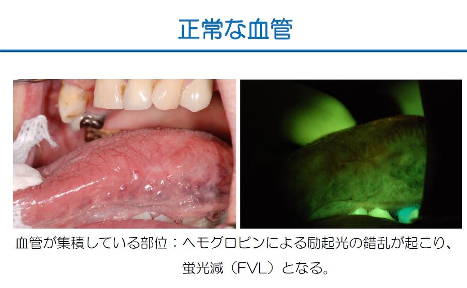 http://www.oralcancer.jp/VELscope%20%E6%AD%A3%E5%B8%B8%E3%81%AA%E8%A1%80%E7%AE%A1.jpg